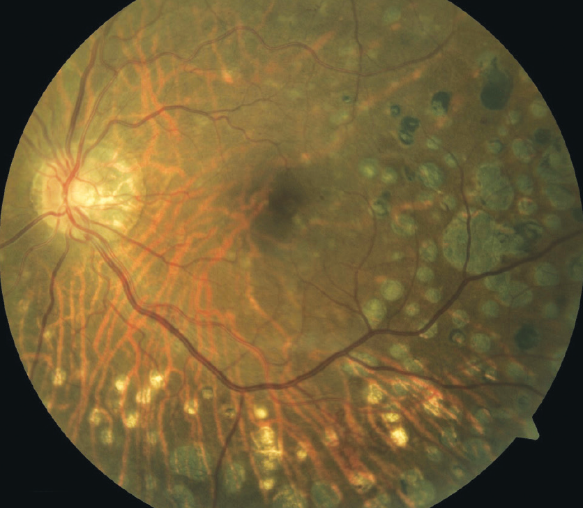 Figure 2. PRP in an eye with PDR.