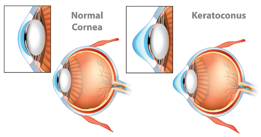 Figure. A visual aid can help patients diagnosed with keratoconus, for example, understand their condition.