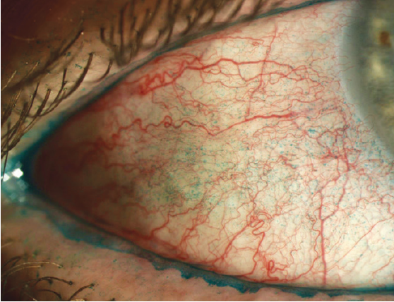 Figure 1. OSD should be therapeutically treated in order to optimize vision and comfort through contact lenses.