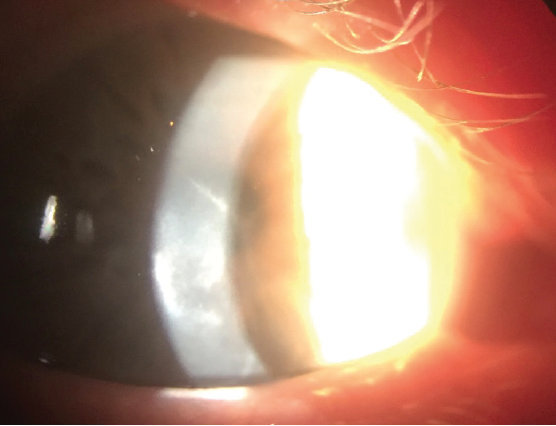 Figure 2. Stromal edema in an eye as shown by corneal haze and deep stromal folds.