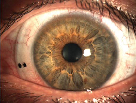 Figure 3. Therapeutic scleral contact lenses can help with severe dry eye symptoms.