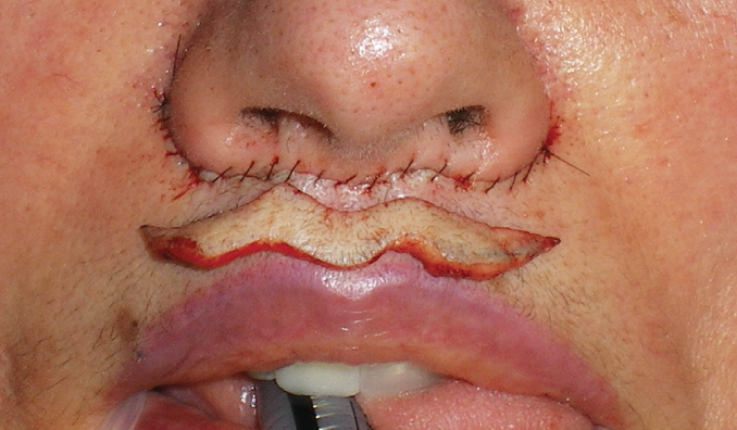 Lip Lifts: A Procedure to Consider - Practical Dermatology
