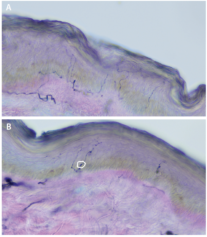 Figure. A: Normal skin biopsy stained with PGP 9.5 immunostain and counterstained with eosin. Horizontal fibers are intraepidermal nerves. Thicker, horizontal fibers are subdermal nerves (these are not analyzed in routine skin biopsy studies). B: Skin biopsy showing abnormal axonal swellings (within white circle).