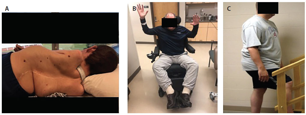 Figure 1. A man, age 29, with severe nonambulatory SMA functional status (nonsitter) was previously classified as having SMA2 (SMN1 0; SMN2 3 copies) and has spine and chest deformity, spinal fusion surgical scar, and a neck strap to secure tracheostomy (A). A man, age 49, previously classified as having SMA3b (SMN1 0, SMN2 4) has proximal arm weakness, severe leg weakness, and is wheelchair-dependent (B). A man, age 49 and able to walk, was previously classified as having SMA4 (SMN1 0, SMN2 5) and has proximal leg muscle weakness, calf hypertrophy, and normal arm strength (C).