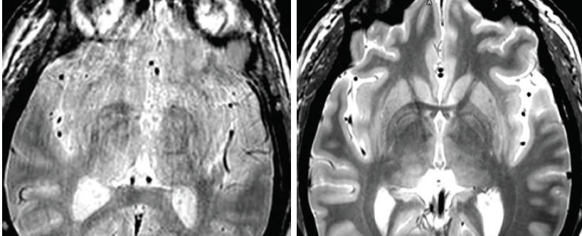Figure. Brain MRI before (left) and after (right) optimizing imaging.