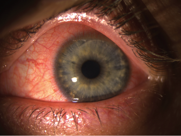 Figure. Photograph shows a cornea 15 minutes after SMILE surgery with superior incision.