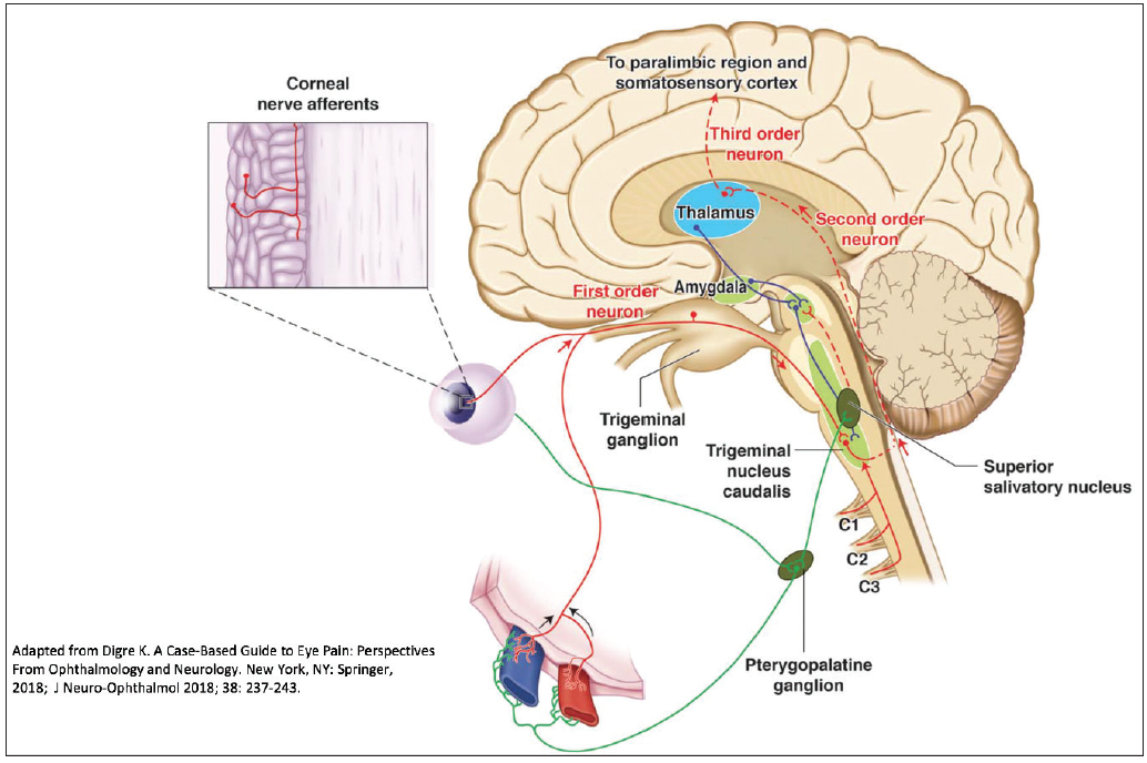 Figure 2. The pathophysiology of migraine as a sensory processing disorder receives peripheral pain input from the dura and from the ocular sensory system—both by way of the first division of the trigeminal nerve.