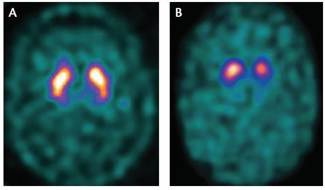 "Figure 1. Dopamine Transporter (DaT) Scan Using Single-Photon Emission CT (SPECT). In a person without presynaptic dopamine transporter (DaT) loss, tracer activity appears uniform throughout the bilateral striatum (caudate nucleus and putamen), which has a ""comma-shaped"" appearance on axial images (A). In a person with Parkinson's disease, activity is asymmetrically reduced in the putamen (posterior portion of the comma) with preserved but lower than normal uptake in the caudate nuclei (B)."