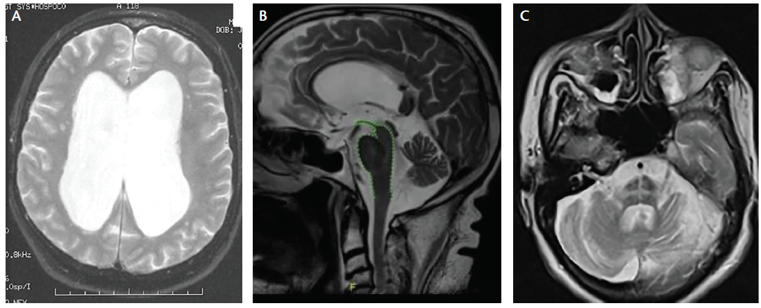 "Figure 2. MRI Signs of Parkinson's Disease Mimics. Several neurodegenerative diseases can cause parkinsonian motor symptoms. Although these cannot be definitively diagnosed or differentiated from Parkinson's disease (PD) with MRI, there are radiologic hallmarks that can be useful when combined with the clinical examination and other diagnostic tests. In normal pressure hydrocephalus, the ventricles are enlarged (A). In progressive supranuclear palsy (PSP), the ""hummingbird sign"" can be seen (B). In multiple system atrophy, the ""hot cross bun"" sign may be seen in the brainstem (C). Image B courtesy of Dr. Gustavo Aguiar. Radiopaedia.org.  Image C courtesy of Dr. Aruna Pallewatte. Radiopaedia.org."