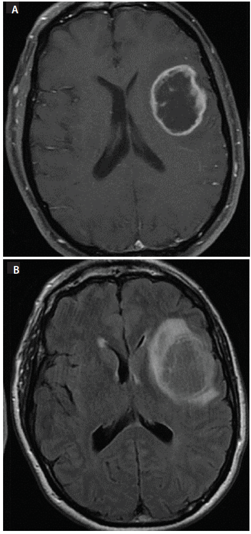 Figure 1: Axial MRI at initial presentation. T1 postcontrast imaging (A), fluid-attenuated inversion recovery (FLAIR) imaging (B).