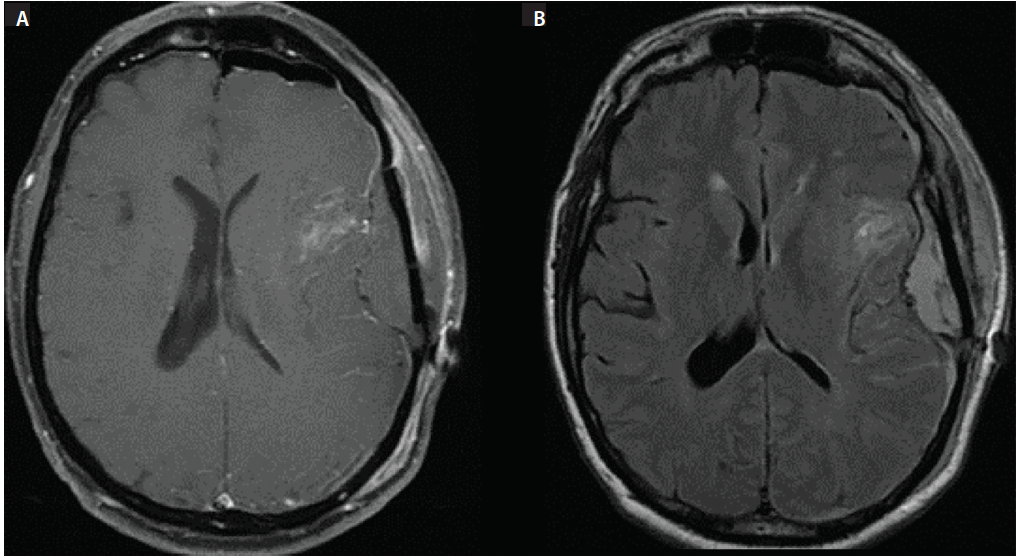 Figure 2: Axial MRI after initial resection. T1 postcontrast imaging (A), fluid-attenuated inversion recovery (FLAIR) imaging (B).