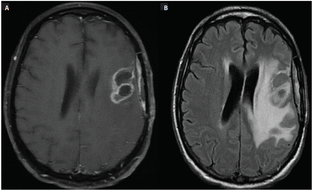 Figure 3: Axial MRI obtained after Mr. D's further neurologic decline. T1 postcontrast imaging (A), fluid-attenuated inversion recovery (FLAIR) imaging (B).