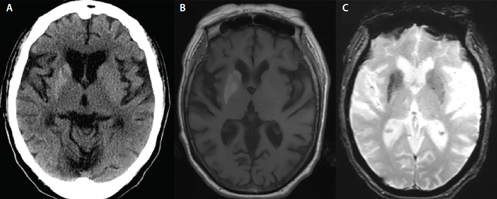 Figure 1.  Noncontrast CT head during the initial admission. Notable hyperdensity is revealed in the right head of the caudate, putamen, and globus pallidus (A). A T1-weighted MRI shows hyperintensity within the same structures, and gradient echo MRI shows bilateral involvement of associated structures (C).