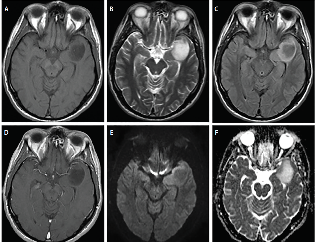 Figure 2: Images from a man, age 44, who presented with a new onset seizure. His MRI findings reveal a left anterior temporal mass (A), and T1 imaging shows a hypointense mass (B,C); whereas, T2/FLAIR is hyperintense without significant contrast enhancement (D), and DWI and ADC demonstrate increased diffusion within the tumor (E, F). Pathology after surgical resection was consistent with an astrocytoma WHO grade 2, IDH wild type and ATRX mutant. Abbreviations: ADC, apparent diffusion coefficient ; DWI, diffusion-weighted imaging; FLAIR, fluid-attenuated inversion recovery; WHO, World Health Organization.