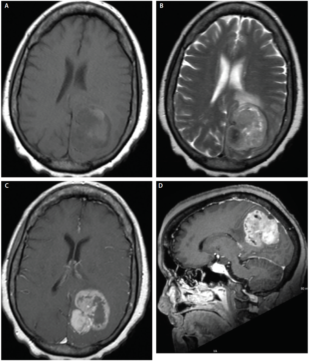 Figure 3:  Images from a woman, age 58, after 3 weeks of progressive right-sided weakness. The MRI reveals an intra-axial T1 isointense (A), T2 heterogenous (B) heterogeneously enhancing mass of the cuneus with surround T2/FLAIR edema surrounding the lesion (C,D). Pathology from surgical resection was consistent with glioblastoma World Health Organization (WHO) grade 4, IDH wild type.