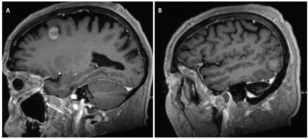 Figure 4: Images from a man, age 74, who had a history of metastatic melanoma. The imaging studies reveal 2 new heterogeneously enhancing brain lesions in the left frontal (A) and temporal lobes (B). These lesions were at the gray-white junction consistent with oligometastatic spread to the brain. Stereotactic radiosurgery of both lesions was performed with the goal of providing local tumor control on both sides.