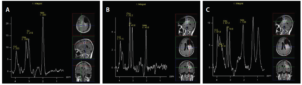 Figure 6: A man, age 38, had a grade 3 oligodendroglioma treated with radiation. Follow up images shown here reveal progression of tumor (T2/FLAIR signal). MR spectroscopy demonstrated contralateral normal spectrum and Hunter's angle (A), ipsilateral areas suspicious for tumor with reversal of Hunter's angle (B), and radiation necrosis (C).