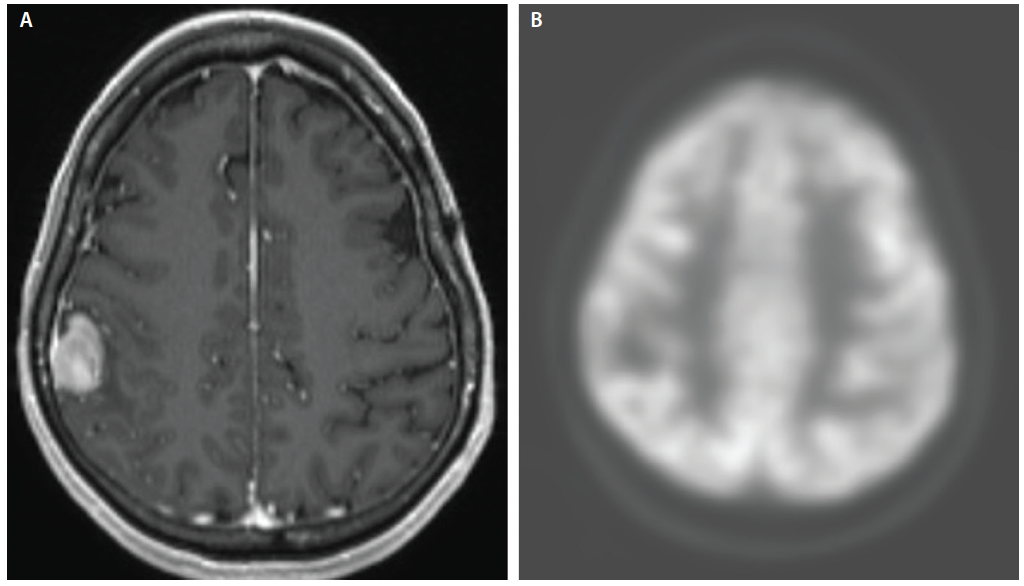 Figure 7: A woman, age 39, who had metastatic breast cancer to the brain that was treated with stereotactic radiosurgery had follow up imaging of the tumor treatment area revealing a continued increased enhancement concerning for tumor progression or radiation necrosis (A). The fluorodeoxyglucose-positron emission tomography (FDG-PET) image of her lesion shows moderate tracer uptake consistent with active tumor at the site (B). Pathology demonstrated a preponderance of active tumor.