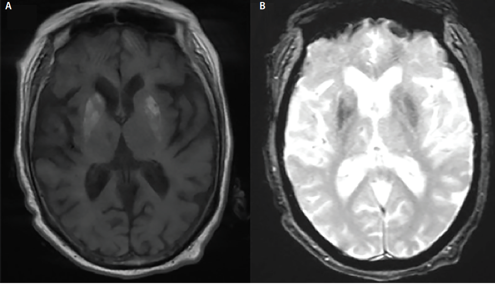 Figure 2. A T1-weighted MRI with bilateral hyperintensity of the putamen, and globus pallidus, and persistent right sided hyperintensity of the head of the caudate (A). Gradient echo MRI shows persistent bilateral involvement of associated structures.