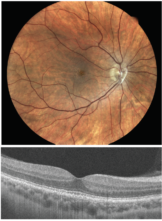 Figure. OCT findings show numerous medium-sized drusen (>63 μm to ≤125 μm) in a patient with early AMD. No pigmentary abnormalities are present.