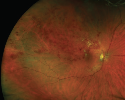 Figure 1. Large symptomatic superotemporal BRVO with significant macular edema.
