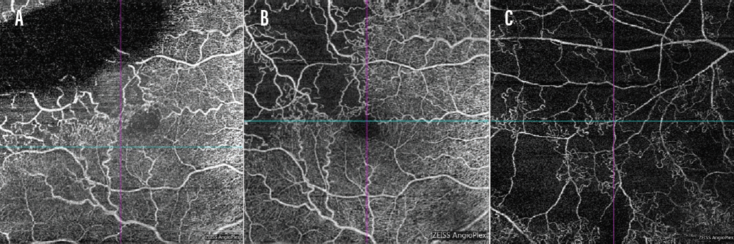 Figure 2. Superficial OCTA taken 3 weeks after the patient seen in Figure 1 was diagnosed with ischemic BRVO (A). Collateral vessels and > 5 DD of capillary dropout can be seen, although partially obscured by superotemporal intraretinal edema. Same patient at 17 months after diagnosis of ischemic BRVO (B); superior arcade at 17 months (C).
