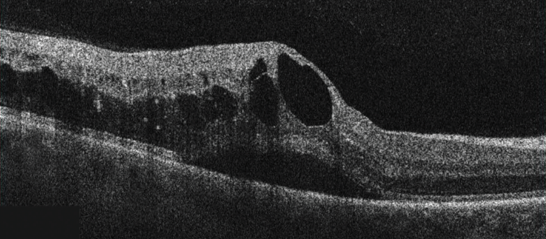 Figure 4. In this OCT image, BRVO with CME and subfoveal detachment are seen.