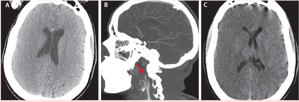 <p>Figure 1. Noncontrast head CT (A) shows subtle hypodensity of the right middle cerebral artery distribution throughout the right cerebral hemisphere. Sagittal CT angiogram with contrast (B) shows tandem occlusion of the right cervical inferior cerebral artery at the level of bifurcation (arrow). Noncontrast head CT (C) shows acute infarction involving the right middle cerebral artery distribution throughout the right cerebral hemisphere, with extensive associated cerebral edema, mild effacement of right lateral ventricle, and an approximate 2-mm right-to-left midline shift at the foramen of Monroe.</p>