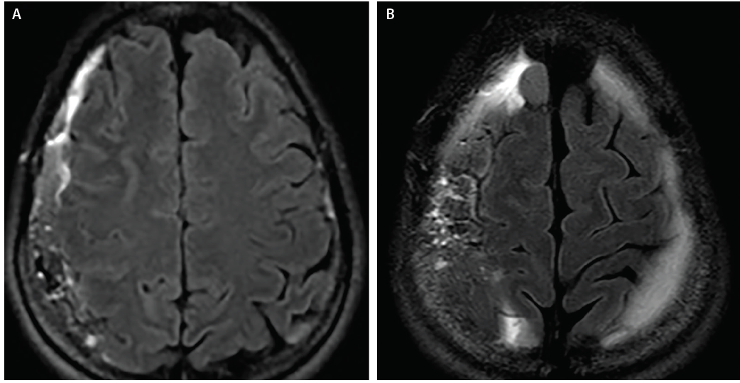 <p>Figure 2: Axial T2-fluid attenuated inversion recovery (FLAIR) MRI at 3 weeks shows bilateral frontoparietal subdural hemorrhages. The left collection (A) is larger and hypointense on T2 imaging compared with smaller and simpler right frontoparietal collection (B).</p>