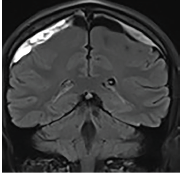 <p>Figure 4: Follow-up coronal T2-fluid attenuated inversion recovery (FLAIR) MRI at 3 weeks shows persistent subdural hemorrhages with mild reduction in volume.</p>
