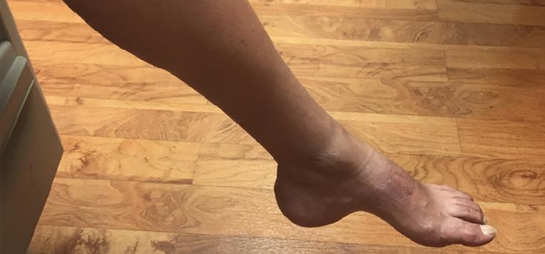 <p>Figure 1. Left foot pes cavus.</p>