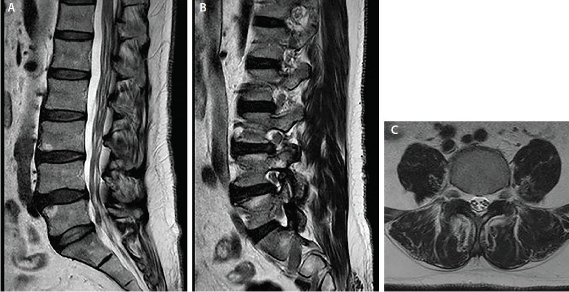<p>Figure 2. Sagittal T2 weighted lumbar MRI diffuse enlargement of the cauda equina nerves (A) and diffuse enlargement of the nerve roots at foramina levels (B). Axial T2 weighted lumbar MRI shows enlargement cauda equina nerve diameters (C).</p>