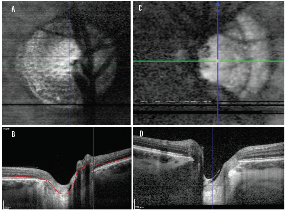 <p>Figure 2. Imaging of the LC in a healthy control (A and B). Note the visualization of the laminar beams (A). Frames C and D show the LC of a patient with glaucoma with significant bending of the lamina. A glial separation can be seen (D).</p>