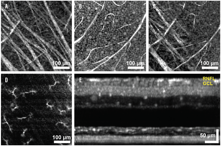 <p>Figure 3. En face imaging of the ganglion cell layer with AO-enhanced OCT and B-scan. RNFL bundles are shown, with thick bundles anteriorly and smaller fibers deep (A). Ganglion cell somas can be seen in the en face image (B). A transition in layers is noted as focus shifts from the RNFL to the ganglion cell layer (C). Presumed macrophages appear in the inner retina (D). An AO-enhanced OCT B-scan illustrates a thin RNFL with cell somas stacked in the ganglion cell layer (E). (Images courtesy of HaeWon Jung; Kazuhiro Kurokawa, PhD; and Donald T. Miller, PhD, of Indiana University.)</p>