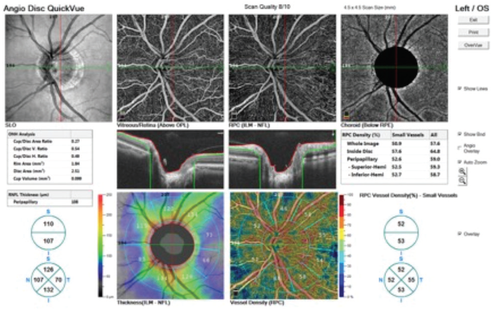 <p>Figure 1. A normal OCTA report of optic nerve RPCs in a healthy 60-year-old man without glaucoma.</p>
