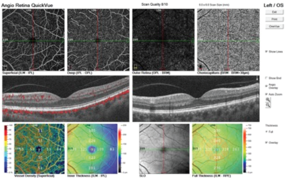 <p>Figure 2. Normal layers of retinal vasculature and structure are seen in this image. Vessel density and inner retinal thickness are symmetric and intact.</p>