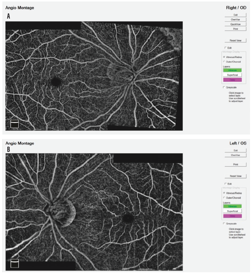 <p>Figure 3. Montages for the right (A) and left (B) eyes of the patient in Figures 1 and 2. Note the intact RPCs and retinal capillaries.</p>