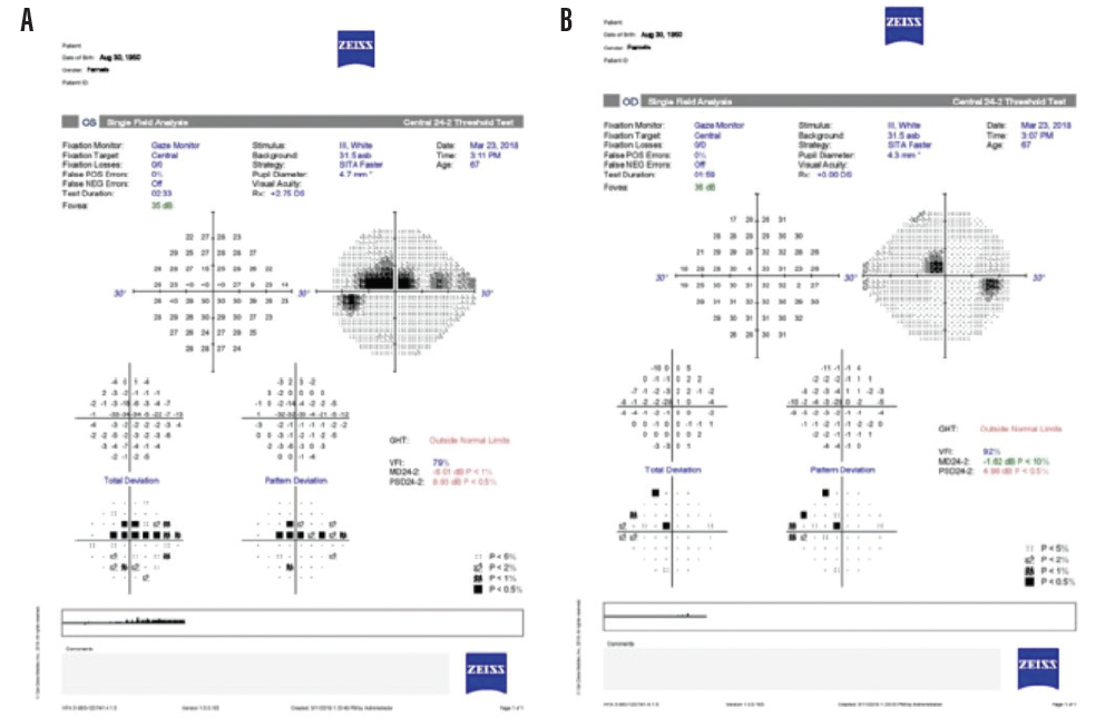 <p>Figure 5. Visual field testing demonstrates functional loss OU, worse OS (A). Both eyes have demonstrable visual field loss in the macular region.</p>