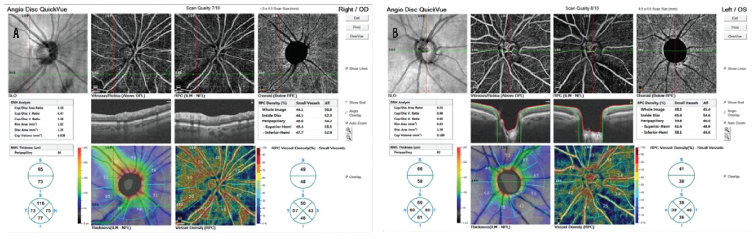 <p>Figure 6. RPC vessel density in the right eye is 49% superiorly and 48% inferiorly on the hemifield analysis and 50% and 46%, respectively, in the quadrant analysis (A). RPC vessel density OS is 41% superiorly and 38% inferiorly on the hemifield analysis and 39% and 36%, respectively, in the quadrant analysis (B).</p>