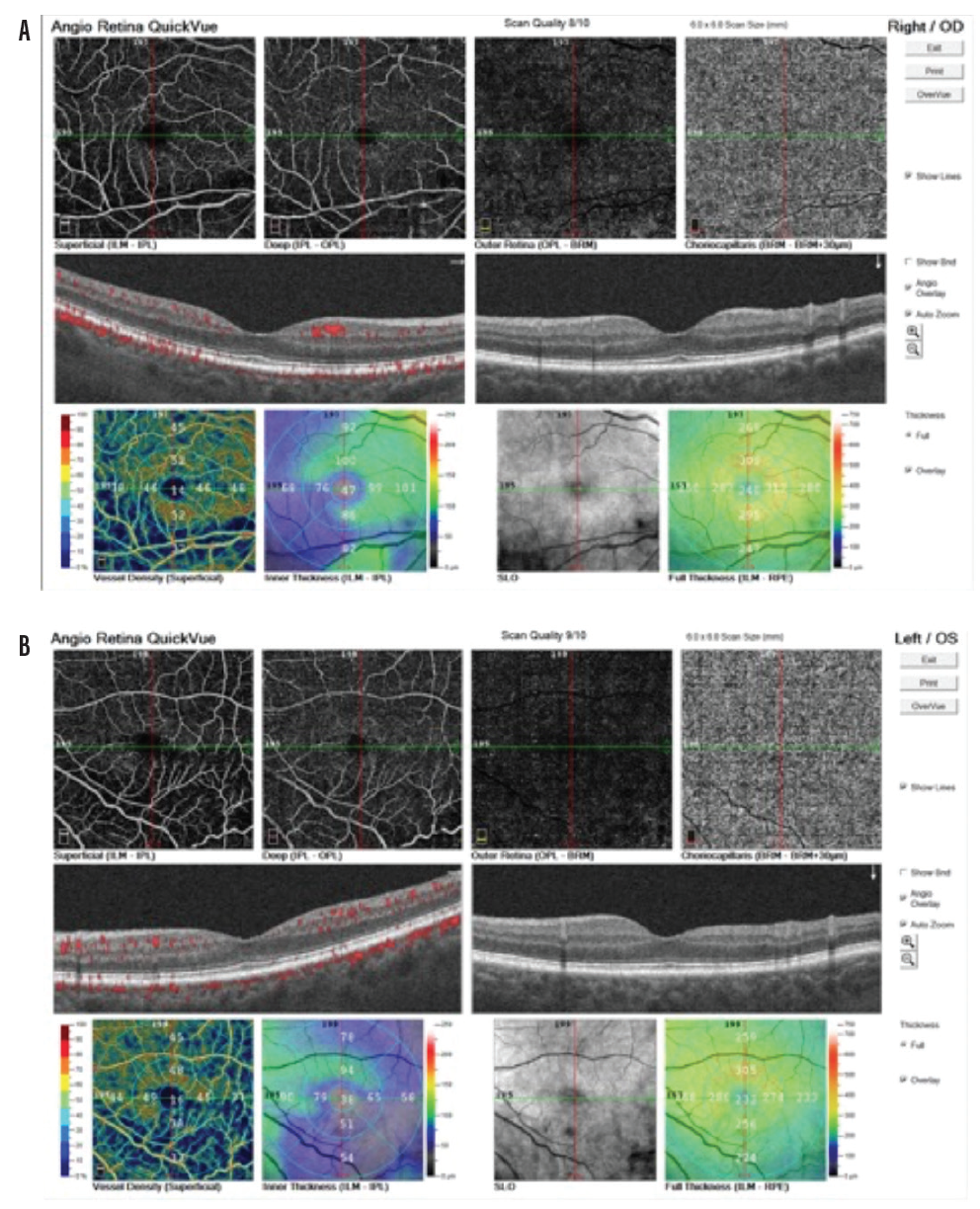 <p>Figure 7. In the right eye, the numbers are 92 µm superior perifovea/100 µm superior parafovea and 82 µm inferior perifovea/86 µm inferior parafovea on the inner retinal thickness map (A). In the left eye, the numbers are 78 µm superior perifovea/94 µm superior parafovea and 54 µm inferior perifovea/51 µm inferior parafovea on the inner retinal thickness map (B).</p>