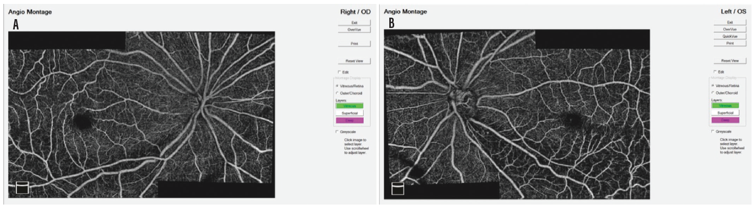 <p>Figure 8. Montages show the compromised capillaries in each eye, worse OS (B).</p>