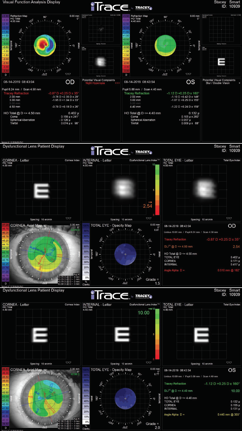 <p>Figure 2. Combined topography and wavefront analysis of a patient with previous LASIK complaining of blur in his right eye (OD). Visual Function Analysis using the iTrace (Tracey Technologies) shows a highly aberrated eye OD compared with the normal wavefront map for the patient's left eye (A). The dysfunctional lens index (DLI) was significantly reduced by a congenital cataract (B). The cataract in the contralateral eye looked identical to the cataract OD upon biomicroscopy, but the DLI in that eye was 10.0 with no visual impact (C).</p>