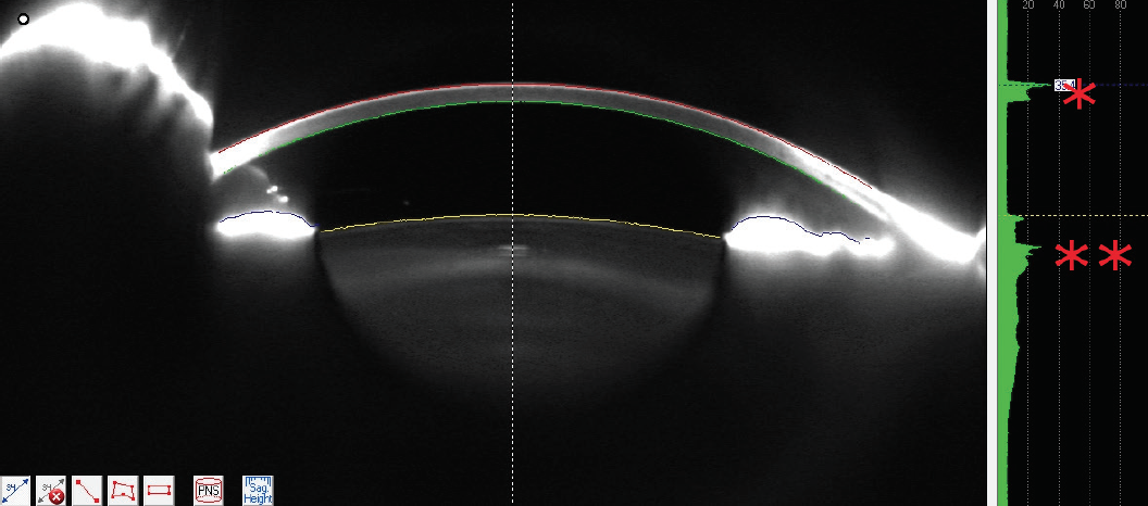 <p>Figure 3. Scheimpflug image (Pentacam) of the same eye as in Figure 1. The red asterisk (*) indicates the corneal densitometry. The red double asterisk (**) indicates the lenticular densometry.</p>