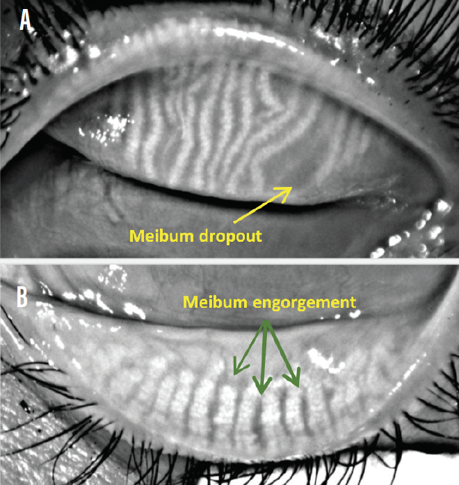 <p>Figure 1. View of meibomian glands. Meibum dropout can be seen in the upper lid (A), while engorgement is evident in the inferior tarsus (B).</p>