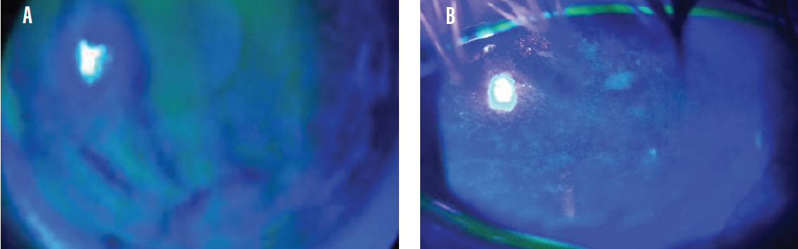 <p>Figure 2. Anterior segment photos show smoothness of the epithelial cells in a healthy eye (A) and moderate disruption of the smooth epithelial layer in the eye of a patient with DED (B), a finding that indicates elevated MMP-9 levels in the tear film.</p>