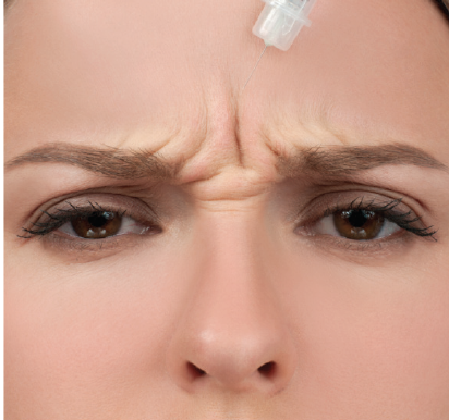 <p>Figure 2. Neurotoxins can help remove frown lines, crow's feet, and forehead lines.</p>