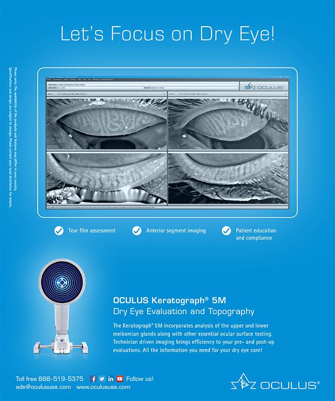 Oculus Keratograph 0719