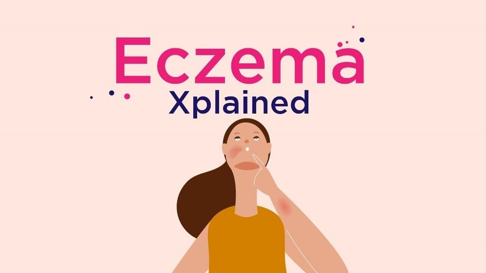 Medicine X Launches Eczema Xplained Patient Story To Drive Understanding and Awareness of AD image