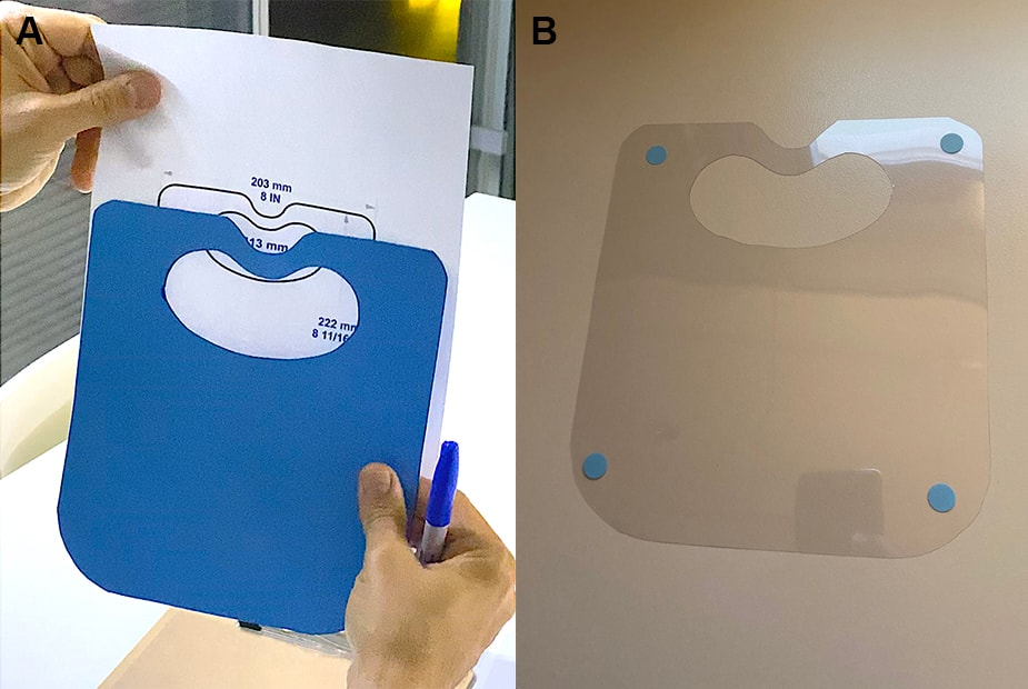 <p>Figure 2. A cardboard replica of the template (A), and an example of the disposable slit-lamp shield (B).</p>