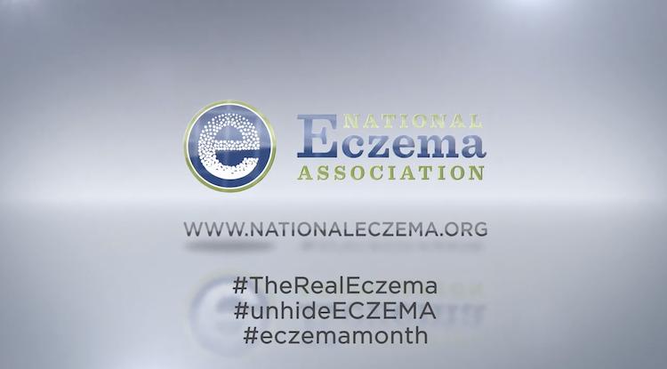 National Eczema Association: The Real Eczema thumbnail